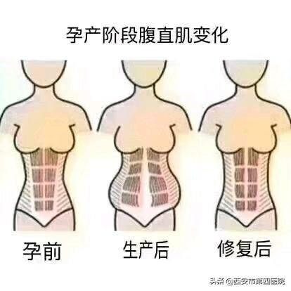 什麼是腹直肌分離。如何修復? - 每日頭條