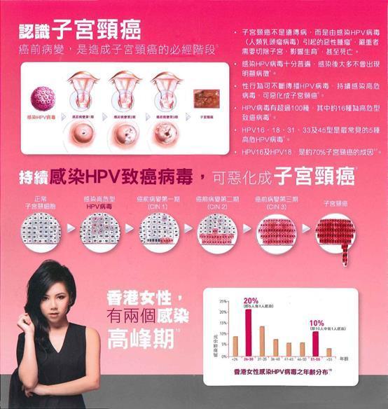 香港注射hpv疫苗_hpv疫苗注射部位_hpv疫苗注射部位圖解_hpv疫苗價格