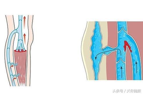 有一種腿痛是由靜脈血栓引起的。可將患者直送ICU - 每日頭條