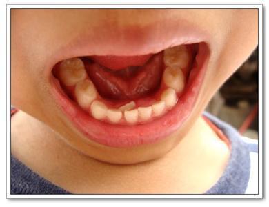 乳牙滯留。長雙排牙。需要拔牙。媽媽應該怎麼做呢? - 每日頭條