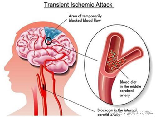 什麼是短暫性腦缺血發作。為什麼說它是腦卒中的先兆? - 每日頭條