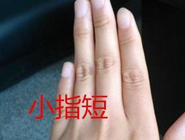 伸出你的手掌來,看看最後一根手指的形態,一生運勢馬上揭曉 - 每日頭條