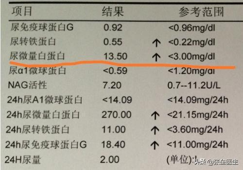 尿蛋白做出來「+」。別的醫院複查正常。和檢查測方法有關係嗎? - 每日頭條
