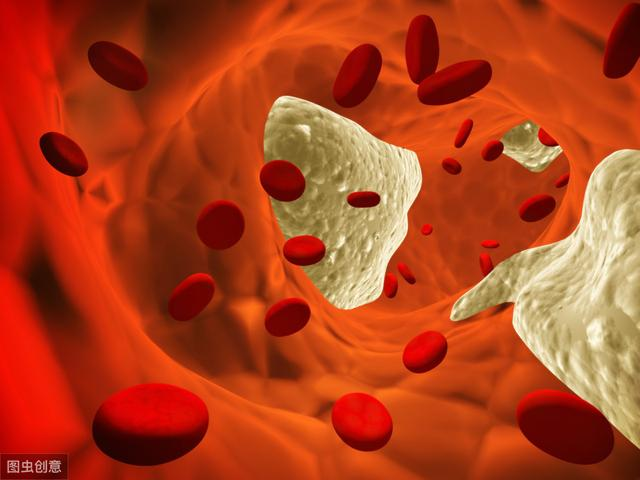 膽固醇超標怎麼辦?醫生給出1條建議,比吃藥還有效,血脂穩穩降 - 每日頭條