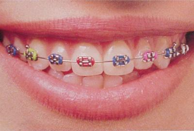 牙齒矯正為什麼醫生不建議牙套只戴一半? - 每日頭條
