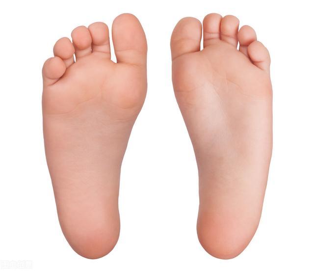 扁平足腳底痛怎麼辦?會不會進一步引發膝蓋痛? - 每日頭條