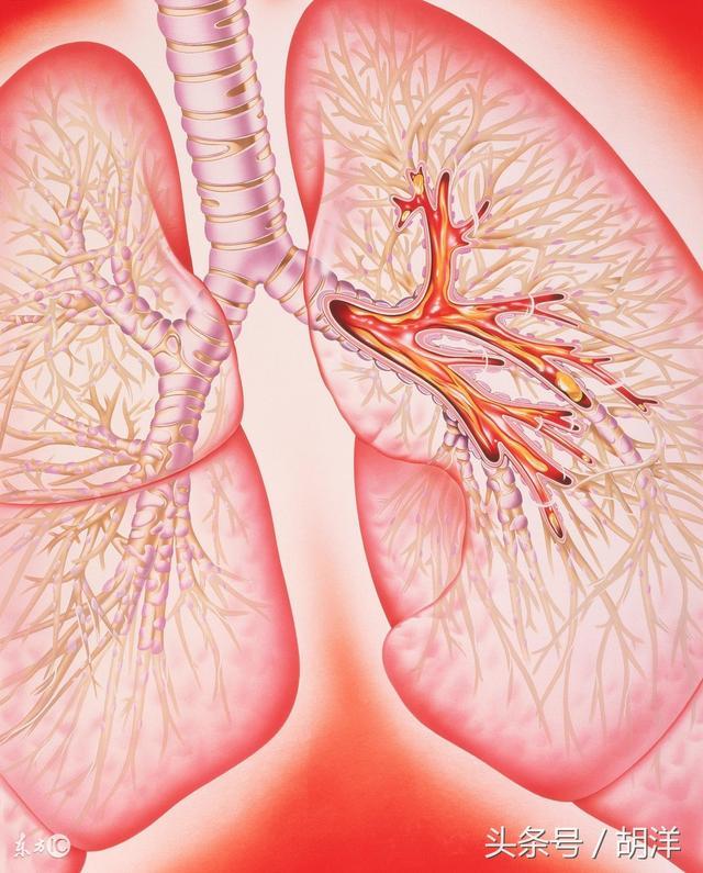 有哪些不起眼的癥狀會演變成不可根治的肺部疾病。包括肺癌 - 每日頭條