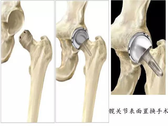 通俗易懂的給您講解髖關節的構造和髖關節置換手術 - 每日頭條