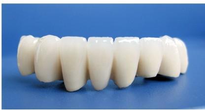 鑲牙選擇哪種材料好? - 每日頭條