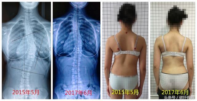 支具治療能減少脊柱側彎的度數嗎? - 每日頭條