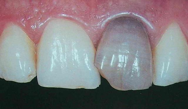 可怕的神經性牙疼 疼痛無時不在! - 每日頭條