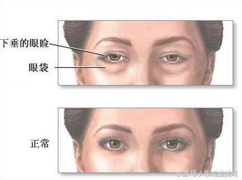 四種類型眼袋該如何消除才有效? - 每日頭條