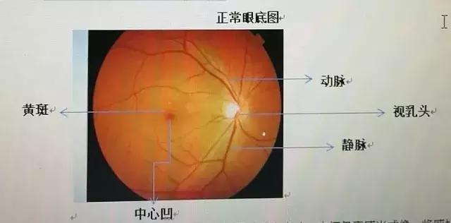 透過眼底知曉身體狀況。這些病看看眼睛就能知道。近視眼更該注意 - 每日頭條