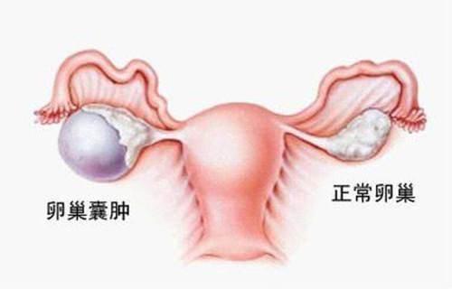 卵巢囊腫。不孕元兇之一!手術治療後。如何促進恢復? - 每日頭條