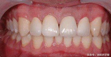 真相解密:為什麼烤瓷牙會讓牙齦變黑? - 每日頭條