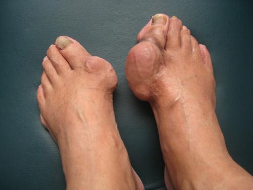 腳出現兩個癥狀,當心「天下第一痛」病要來了! - 每日頭條