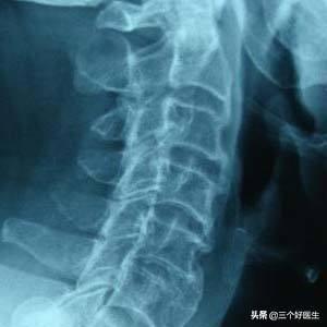 脊椎退化的四個階段,您屬於哪一個階段? - 每日頭條