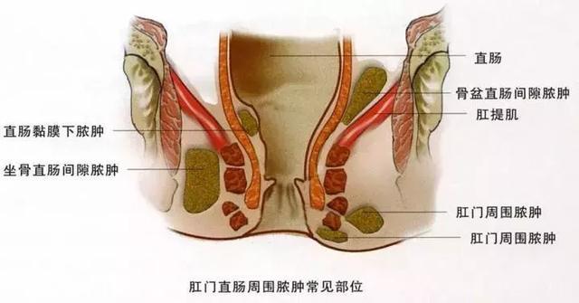 肛周膿腫流膿了怎麼辦? - 每日頭條
