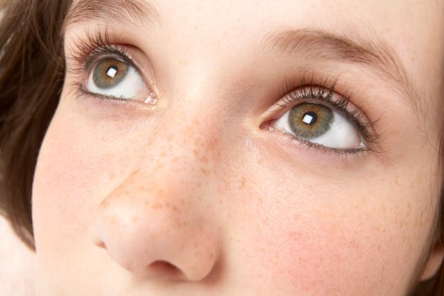 黃褐斑如何治療 - 每日頭條