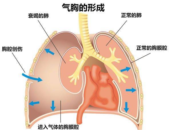 自發性的氣胸急救方法 - 每日頭條