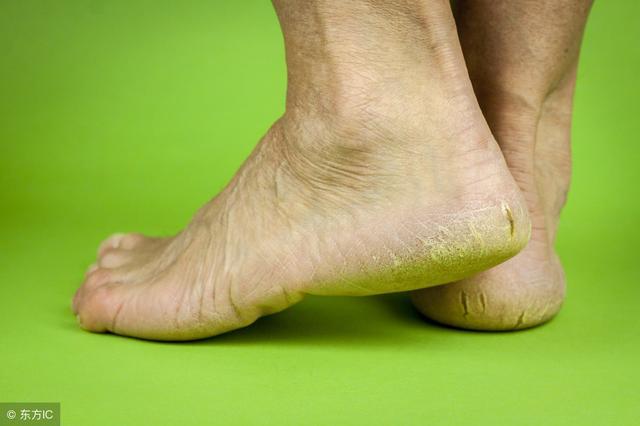 腳後跟乾裂起硬皮是什麼原因?這是真菌導致的! - 每日頭條