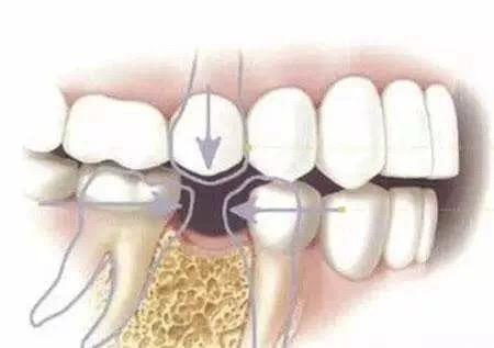 缺牙不補會縮短壽命!最好的補牙方式是這個。輕鬆還你一口好牙! - 每日頭條
