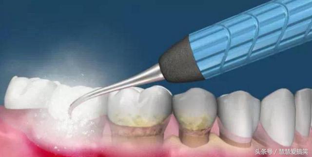 什麼是牙結石?怎樣去除牙結石。配合正確的刷牙方法! - 每日頭條