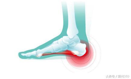 腳跟痛是身體有病的徵兆,如何預防很關鍵,看看這幾個方法! - 每日頭條