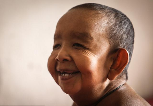 四歲男童不幸患早衰癥,樣貌皮膚似90歲老人 - 每日頭條