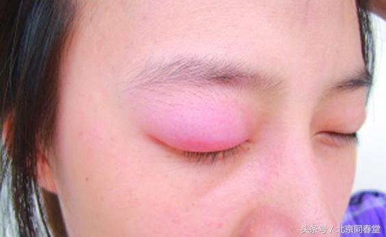眼皮或嘴唇突然腫成大包?可能是這種病! - 每日頭條