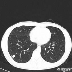 如何判斷肺部小結節是良性還是惡性。這幾點徵象能夠幫助判斷 - 每日頭條