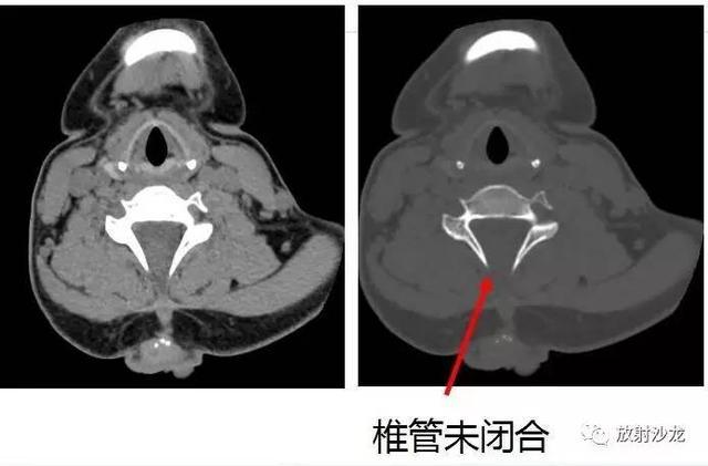 少見病例解讀 神經管閉合不全+Chiari畸形 - 每日頭條
