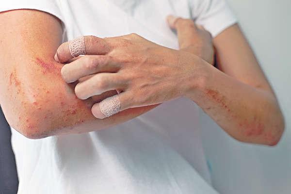 濕疹又犯了?教你幾個辦法治療濕疹。效果立竿見影 - 每日頭條