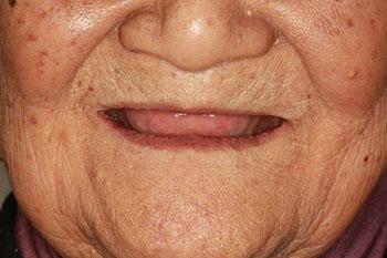 老年人從幾歲掉牙才算是正常現象呢? - 每日頭條