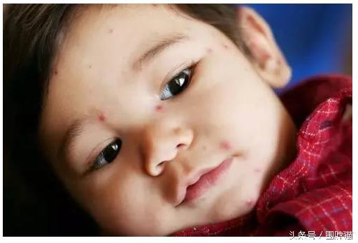 20種常見嬰幼兒皮疹圖文指南 | 教你輕鬆識別寶寶身上的小紅 - 每日頭條
