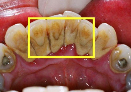 快速消除牙結石的小方法。在家抽出5分鐘就能搞定! - 每日頭條