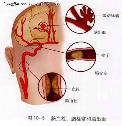 腦中風、腦卒中、腦出血、腦梗塞。腦血栓是一個病嗎? - 每日頭條