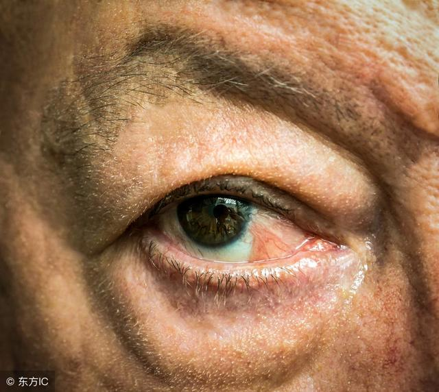 有慢性鼻炎的要看看。鼻息肉有多可怕。很容易變成癌 - 每日頭條
