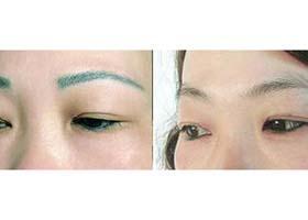 雷射洗眉後眉毛還能生長嗎 - 每日頭條