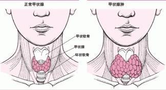 引起甲狀腺腫大的病因有哪些? - 每日頭條