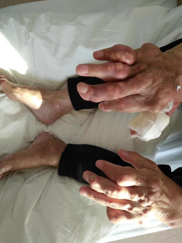 老人痛風40年長出百塊痛風石 雙手變形像盆景樹枝 - 每日頭條