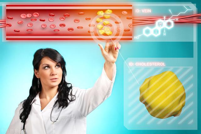 膽固醇高有哪些癥狀。膽固醇高飲食有哪些禁忌? - 每日頭條