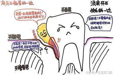 洗掉這麼大塊牙結石。以為是牙齒碎了! - 每日頭條