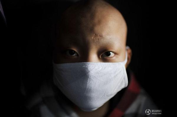 兒童白血病早期癥狀有哪些?如何預防? - 每日頭條
