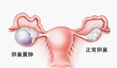 卵巢囊腫癥狀及治療方法 - 每日頭條
