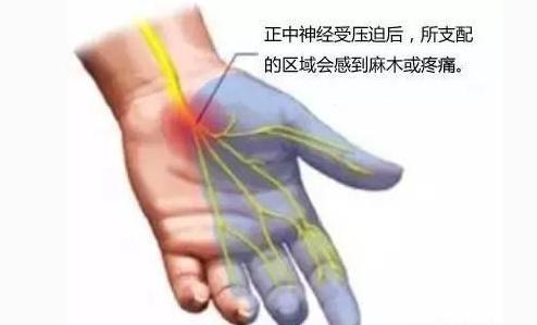 頸椎病真煩人!手麻脖子痛,頭昏頭痛怎麼辦?1個偏方防治頸椎病 - 每日頭條