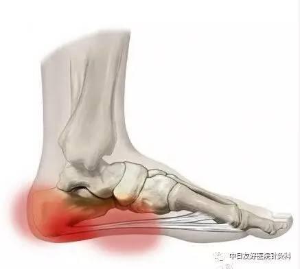 腳後跟疼痛難忍!「跟痛癥」應該怎麼治? - 每日頭條