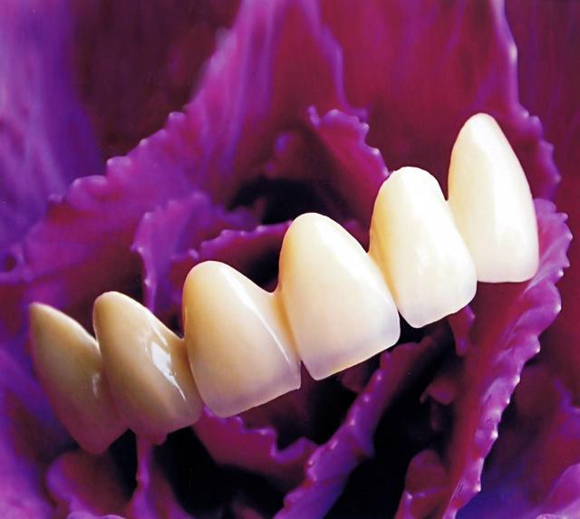 牙醫短科普丨普通烤瓷牙到底好不好 - 每日頭條