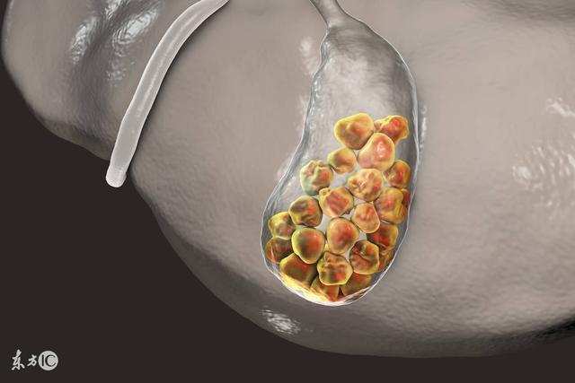 早期發現的腎結石都可保守治療,你還在繼續拖嗎? - 每日頭條