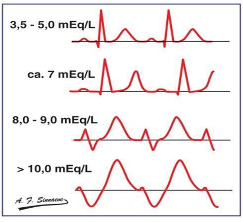 血鉀異常的心電圖表現,最經典的在這裡! - 每日頭條